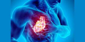 parada-cardiorespiratoria